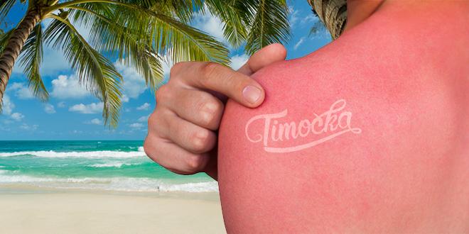 Bela tetovaža — Opekotina od sunca