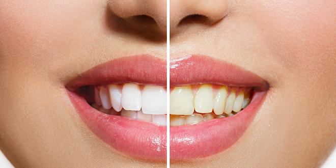 Ženski zubi — Pre i nakon izbeljivanja zuba