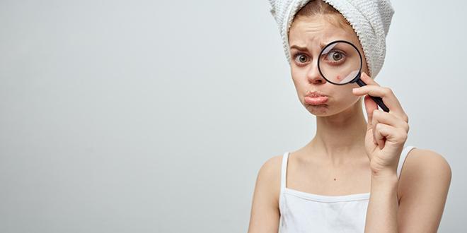 Тужна девојка показује под лупом своју бубуљицу на лицу