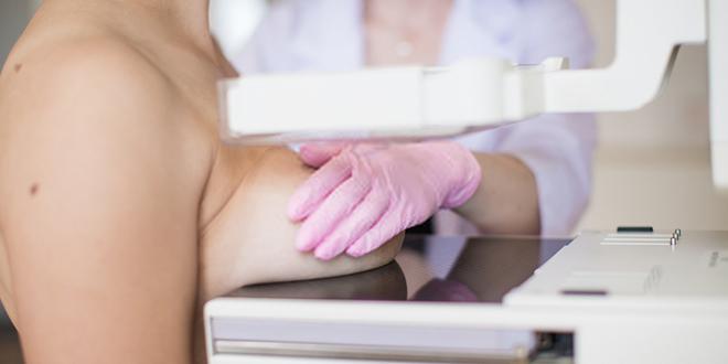 Mamograf — Pregled, skrining dojke