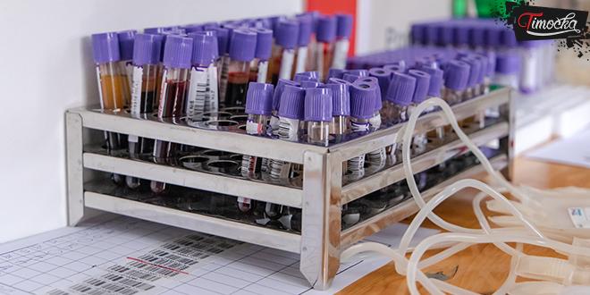 Vakuumske epruvete za prikupljanje krvi